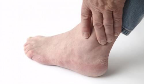 Tìm hiểu nguyên nhân và triệu chứng gây nên bệnh gout