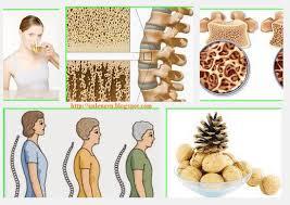 Khi bị loãng xương bạn nên ăn gì?
