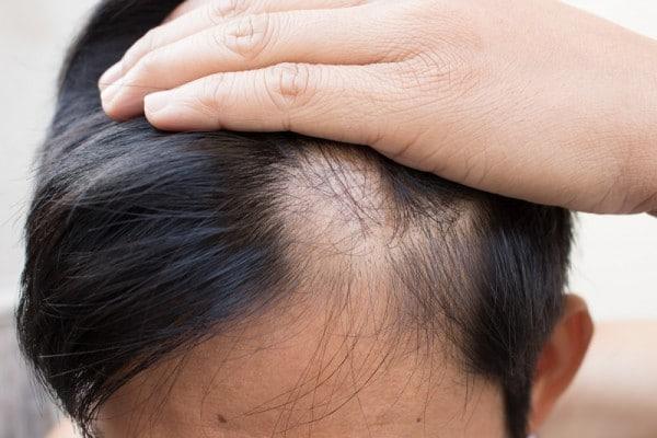 chống rụng tóc ở nam giới