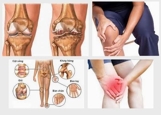 Những điều cần tránh khi bị đau khớp gối