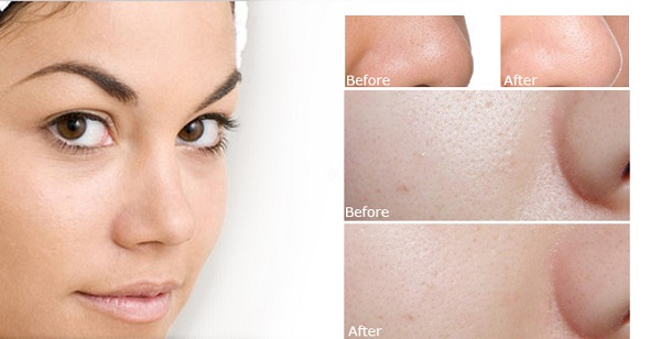 Review về bioderma pore refiner