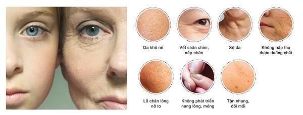 Làn da thiếu collagen