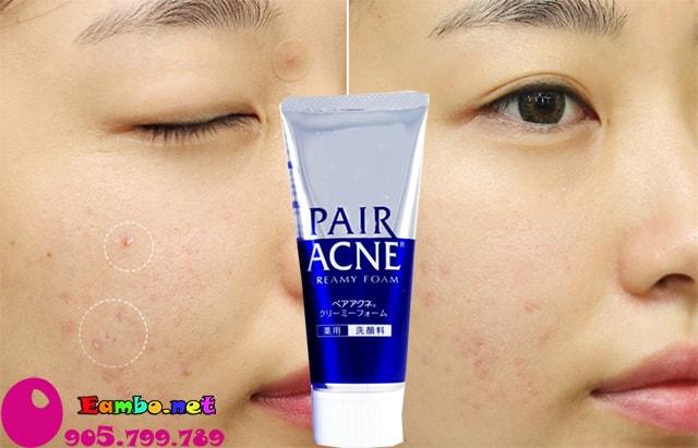 sua-rua-mat-pair-acne-cream-foam-80g-nhat-3