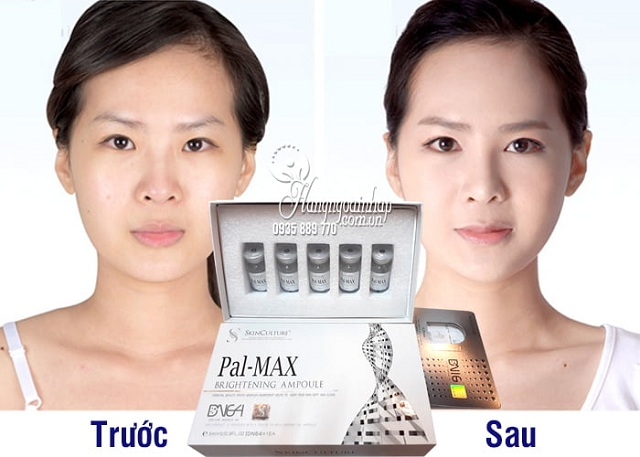 Set cấy trắng da Pal-Max Brightening Ampoule của Hàn Quốc 2