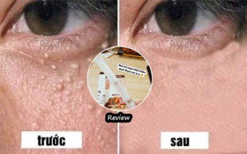 Keview kem trị mụn thịt tsubuporon từ chuyên gia, Và cách sử dụng