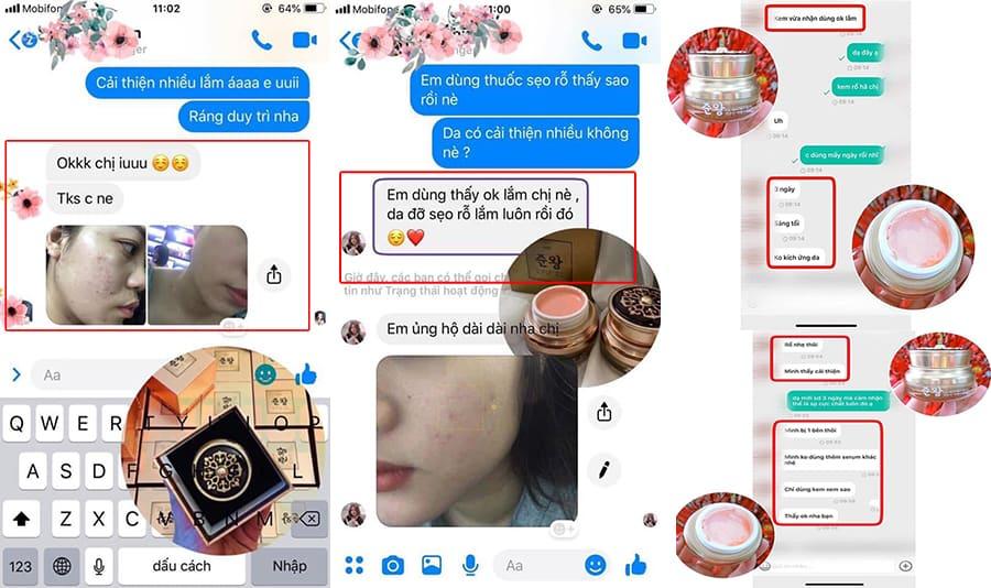 Một số review thuộc trị sẹo rỗ đông y genie từ khách hàng trên fb
