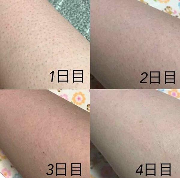 Kem trị viêm nang lông Kobayashi tuýp 20g Nhật Bản 5