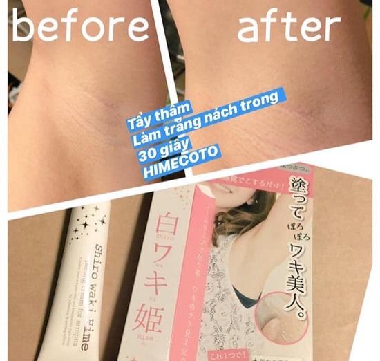 Kem trị thâm nách Himecoto 18g của Nhật Bản, giá đại lý 3