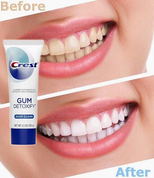 Review kem đánh răng Crest Pro Health 116g của Mỹ-5