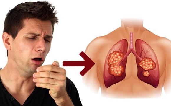 Viên uống giải độc phổi Lung Detox Healthy Care Úc mẫu mới 5